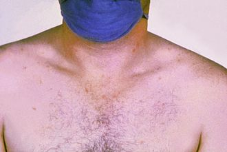 Rose spots - Rose spots on the chest of a patient with typhoid fever