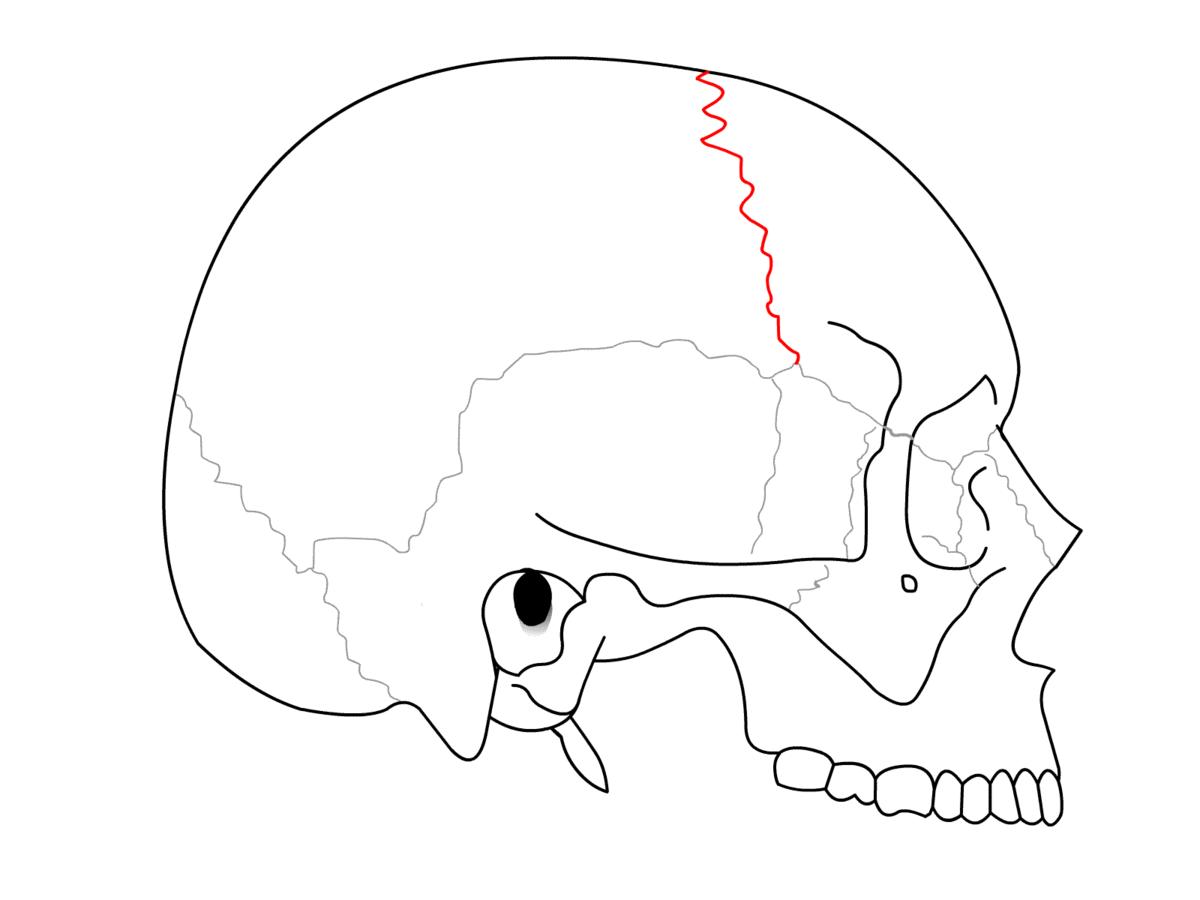 Sutura coronal - Wikipedia, la enciclopedia libre
