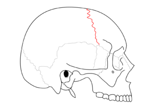 "Coronal suture - Side view of the skull. (""Coronal suture"" in red.)"