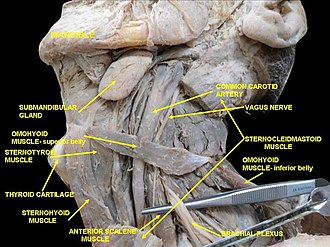Scalene muscles - Image: Slide 2ABBA