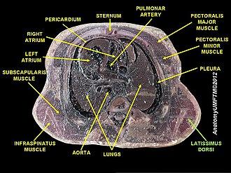 Latissimus dorsi muscle - Image: Slide 9111