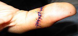 suturer som försvinner av sig själv