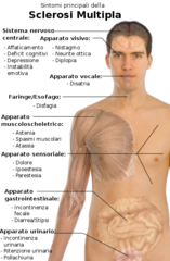 File:Symptoms of multiple sclerosis-IT.png - Wikimedia Commons
