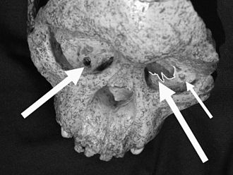 Taung - The Taung Child Skull with arrows pointing to Eagle caused damage