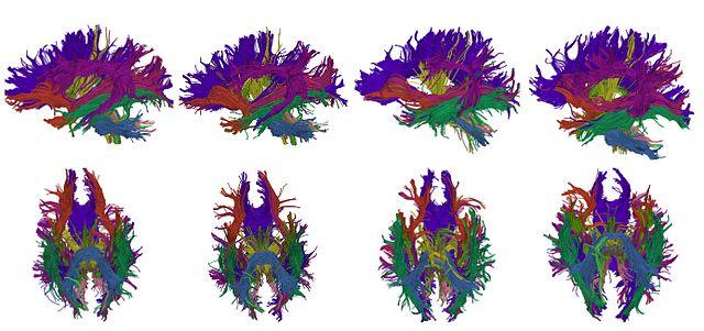 Resultado de imagen de Diffusion tensor imaging