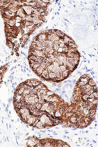 ALK inhibitor - Micrograph showing an ALK positive adenocarcinoma of the lung. The ALK immunostain allows individuals with ALK rearrangements to be identified.
