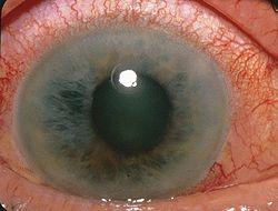 Acute Angle Closure-glaucoma.jpg