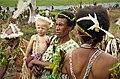 Albino child (48885968572).jpg