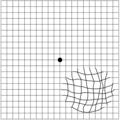 Amsler grid - distorted vision (metamorphopsia).png
