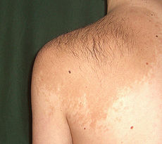 Beckers Nevus on the left shoulder