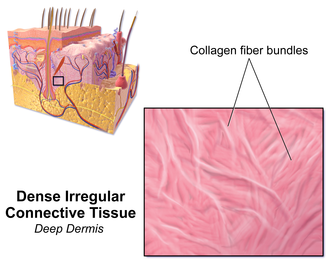 Dense irregular connective tissue - Illustration of Dense Irregular Connective Tissue (Deep Dermis)