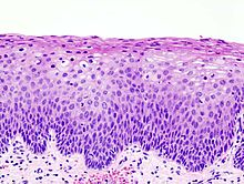 Cervical intraepithelial neoplasia (3) CIN2.jpg