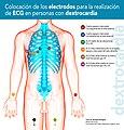 Colocación Electrodos ECG en Personas con Dextrocardia.jpg