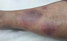 erythema nodosum asociovaná se systémovým lupus erythematodes