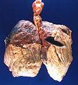 Fibrinous pleuritis overlying subpleural rheumatoid nodules (4864373998).jpg