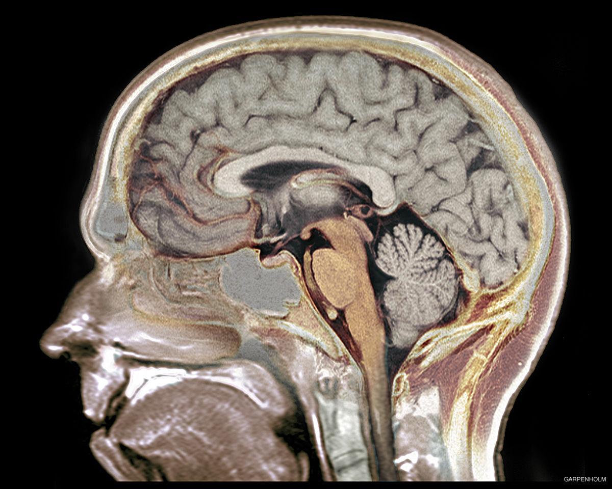 Aivojen Anatomia