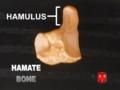 Hamate bone - Hamulus.png