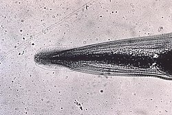 Head of Enterobius vermicularis human pinworm 5230 lores.jpg