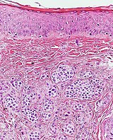 Histopathology of dermal nevus, high magnification.jpg