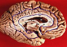 Inferior Medial View of a Dissected Brain