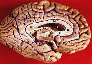 Human brain inferior-medial view description 3.JPG