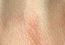 Human skin structure.jpg