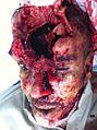 Isa Abdulhasan Ali Hussain head opened.jpg