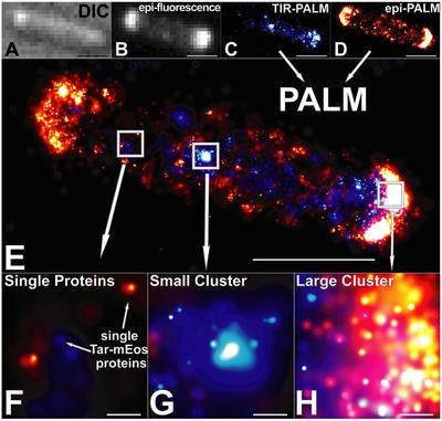 Photoactivated localization microscopy - Wikipedia
