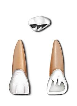 Maxillary central incisor - Wikipedia