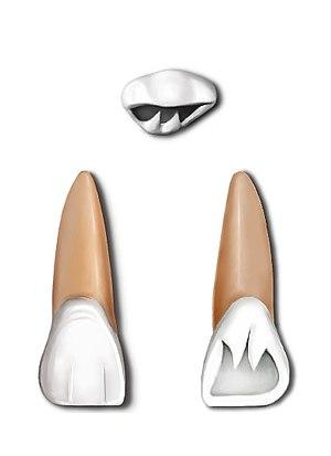 Maxillary central incisor - Maxillary central incisor