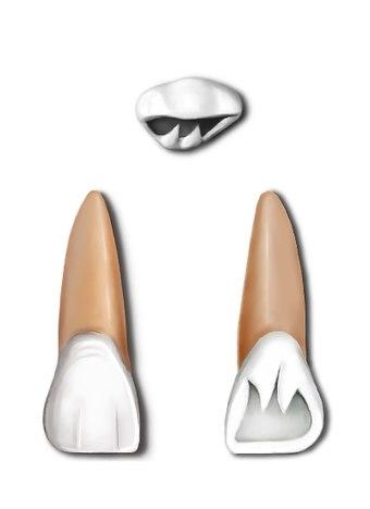 Maxillary central incisor.jpg