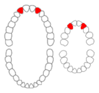 Maxillary lateral incisor - Maxillary lateral incisors of permanent and primary teeth marked in red.