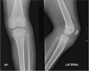 Medical X-Ray imaging FPS04 nevit.jpg