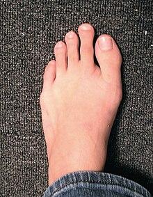 dolor punzante dedo gordo pie derecho