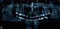 Panoramic braces.jpg