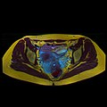 Pelvic MRI 06 12.jpg