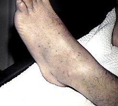 sarpullido morado con manchas en la pierna