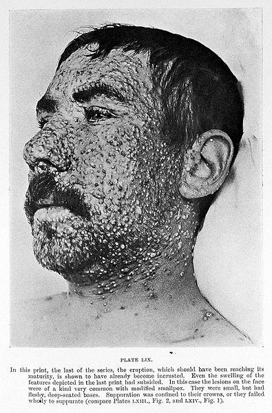 "File:Ricketts, ""Diagnosis of smallpox""; head of man Wellcome L0016255.jpg"