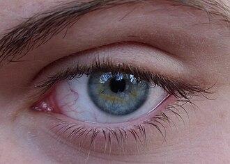 Dilated fundus examination - Image: Same eye