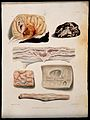 Several sections of diseased brain and spine. Coloured stipp Wellcome V0009783.jpg