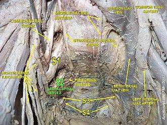 Sacral spinal nerve 2 - Image: Slide 19y