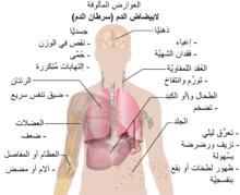 ابيضاض الدم ويكيبيديا