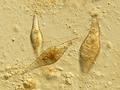 Trichobilharzia.regenti.eggs.png