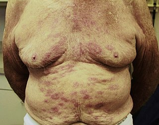 Leprosy Chronic infection caused by bacteria Mycobacteria lepræ and lepromatosis