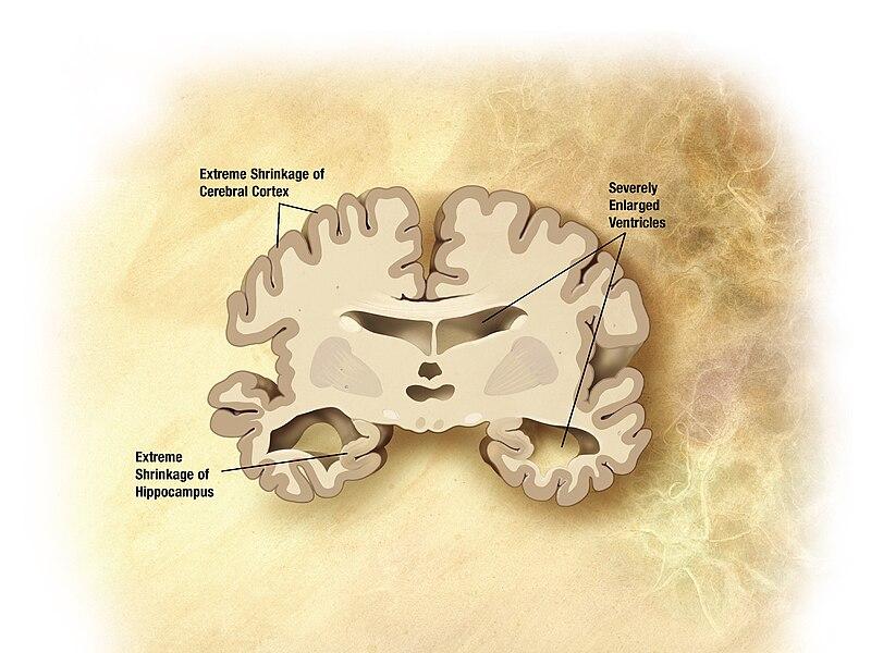 File:Alzheimer's disease brain severe.jpg