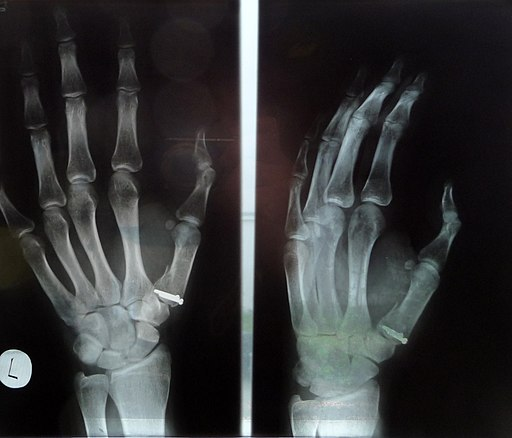 Bennet's fracture X-ray (1)