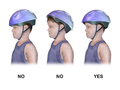 Bicycle Helmet - Correct vs. Incorrect Placement.png