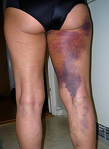 Bruise - Wikipedia