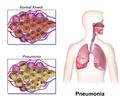Blausen 0994 Pneumonia.png