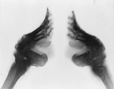 Foot binding, a practice commonly inflicted on Chinese women between the 10th century and the early 20th century. The image shows an X-ray of two bound feet. Bound feet (X-ray).jpg